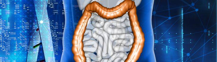 Benvenuta prevenzione: il caso del tumore del colon-retto