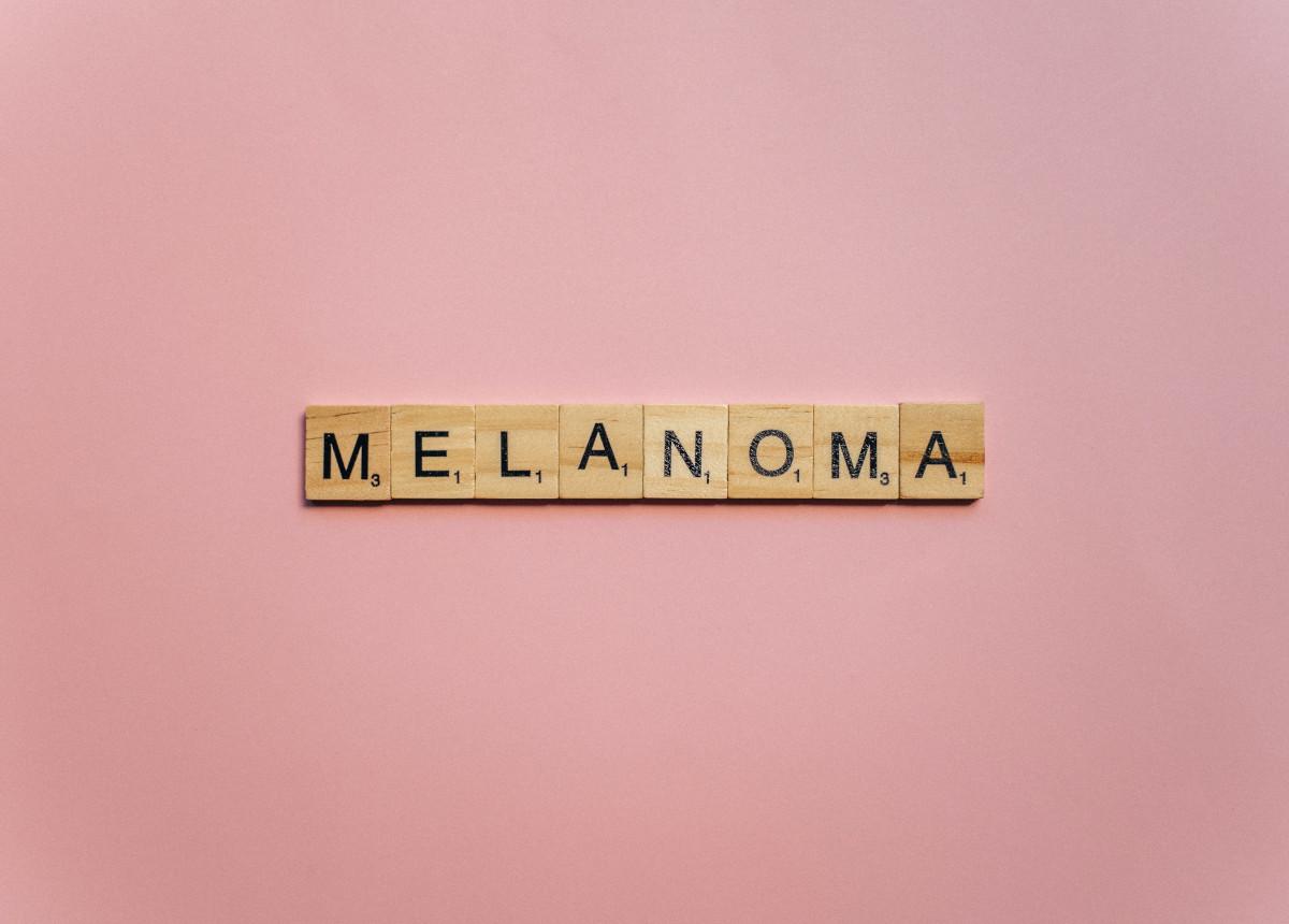 Melanoma: terapie innovative e potenzialità di cura